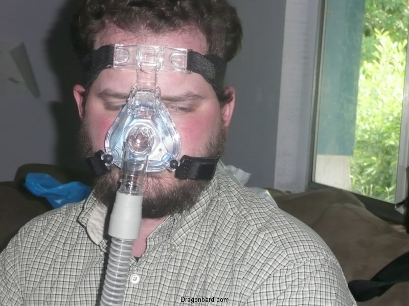 Chris with CPAP.